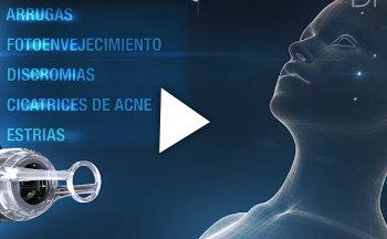 ¿Qué es la tecnología Acupulse?